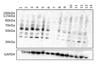 Western Blotting validation image for anti-Complement Component C9 (C9) (AA 191-220), (Center) antibody (ABIN657704)