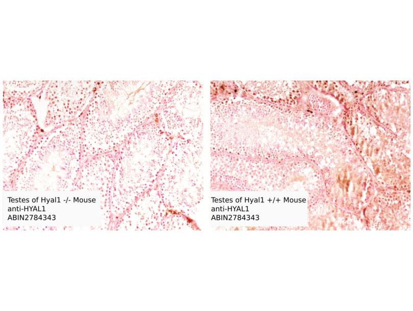 Immunohistochemistry validation image for anti-Hyaluronidase-1 (HYAL1) (N-Term) antibody (ABIN2784343)