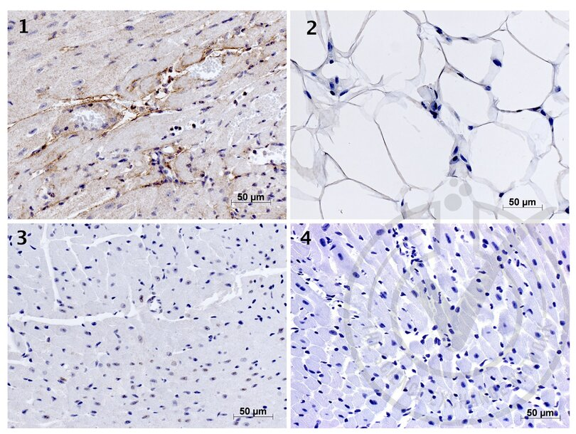 Immunohistochemistry validation image for anti-Elastin (ELN) (AA 750-786) antibody (ABIN734003)