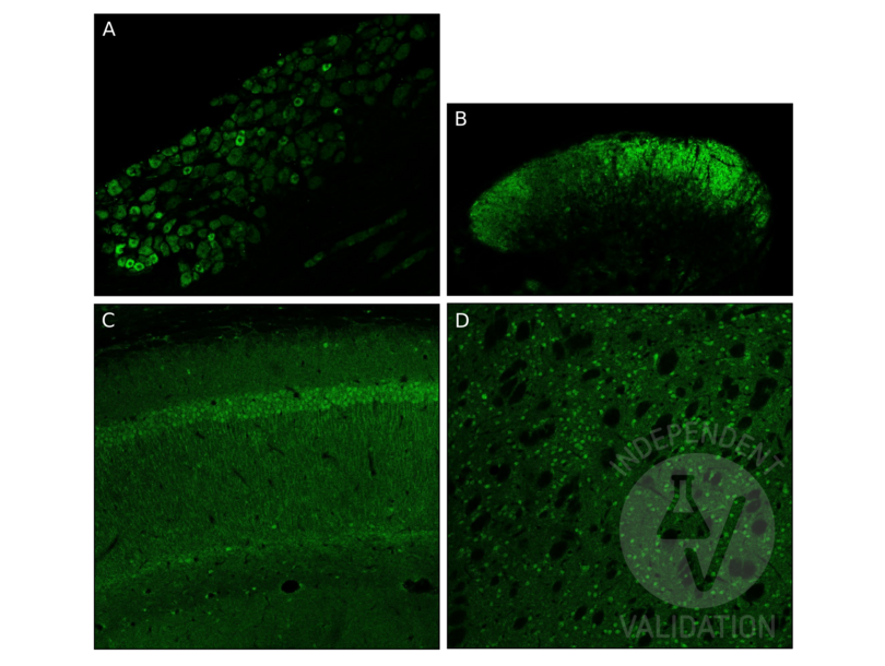 Immunofluorescence validation image for anti-Glial Cell Line Derived Neurotrophic Factor (GDNF) (AA 166-211) antibody (ABIN736536)
