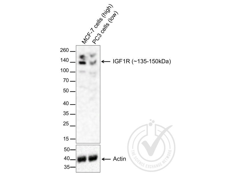 Western Blotting validation image for anti-Insulin-Like Growth Factor 1 Receptor (IGF1R) (AA 260-290) antibody (ABIN726575)