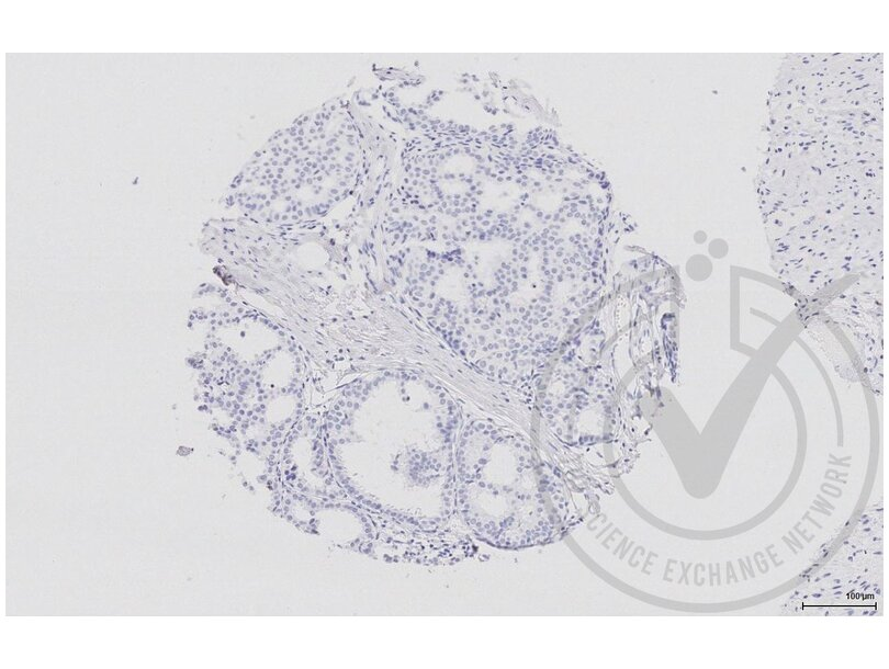 Immunohistochemistry validation image for anti-Mitogen-Activated Protein Kinase Kinase 5 (MAP2K5) (AA 380-430) antibody (ABIN754183)