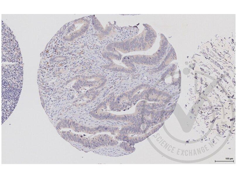 Immunohistochemistry validation image for anti-V-Raf-1 Murine Leukemia Viral Oncogene Homolog 1 (RAF1) (AA 25-60) antibody (ABIN733208)