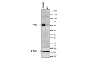Western Blotting validation image for anti-Tumor Protein P53 (TP53) (full length) antibody (ABIN967416)