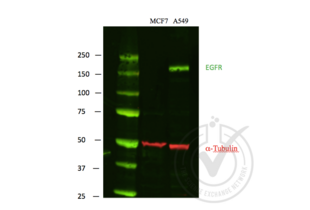 Western Blotting validation image for anti-Epidermal Growth Factor Receptor (EGFR) antibody (ABIN98862)