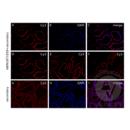 anti-Androgen Receptor Antikörper (AR)