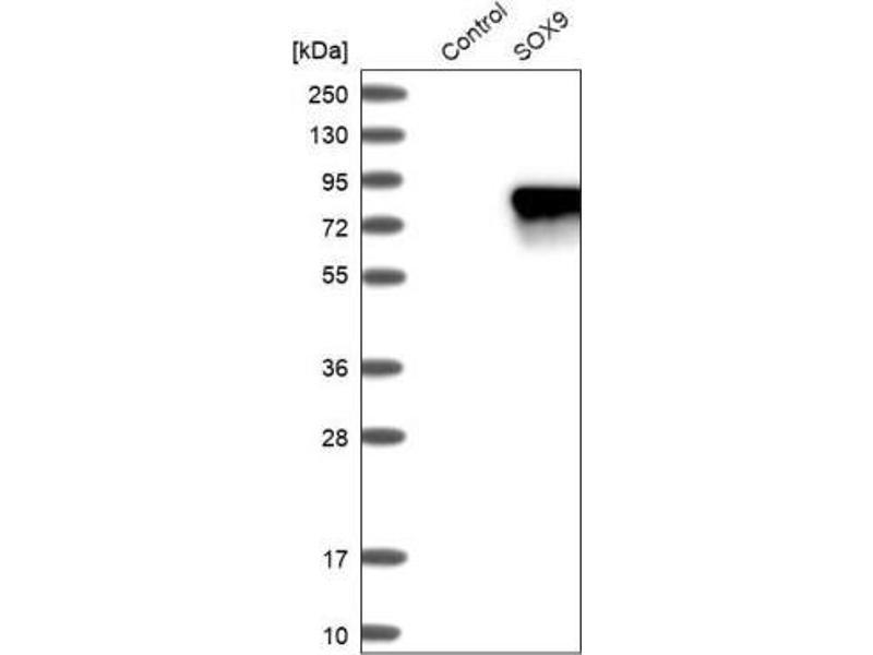 Western Blotting (WB) image for anti-SRY (Sex Determining Region Y)-Box 9 (SOX9) antibody (ABIN4355424)