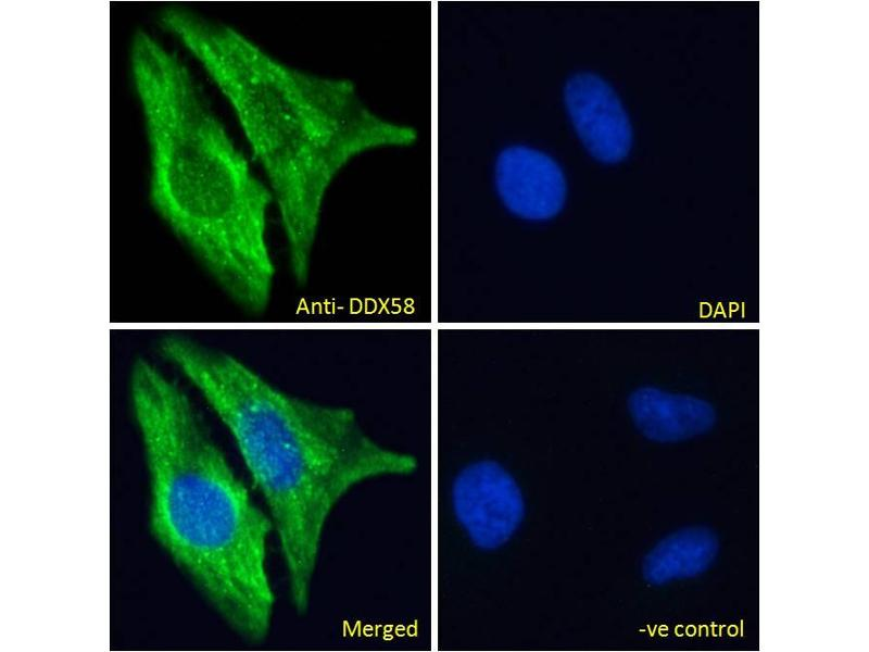 Immunofluorescence (IF) image for anti-DEAD (Asp-Glu-Ala-Asp) Box Polypeptide 58 (DDX58) (C-Term) antibody (ABIN6391376)