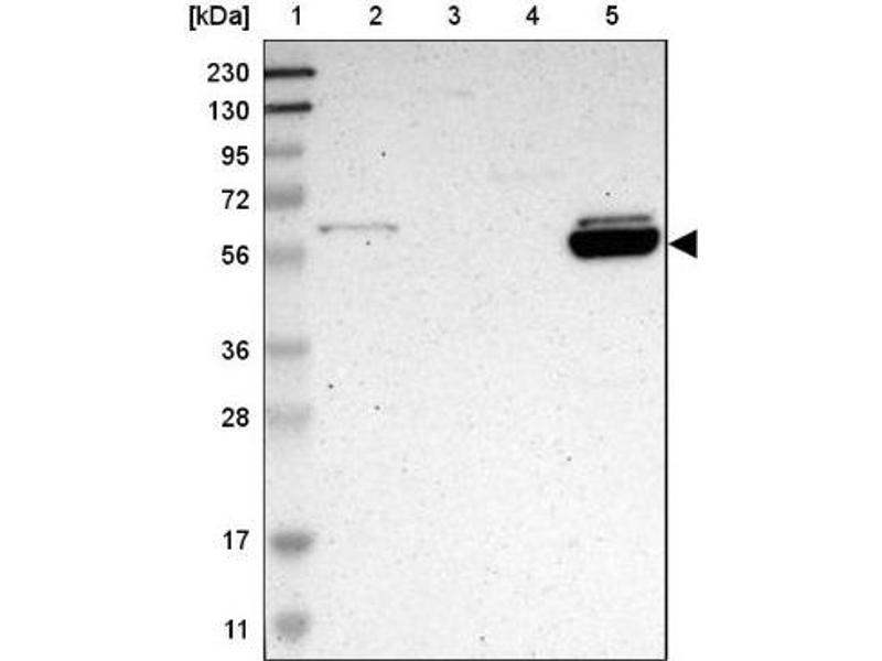 Western Blotting (WB) image for anti-Aldehyde Dehydrogenase 1 Family, Member A2 (ALDH1A2) antibody (ABIN4279209)