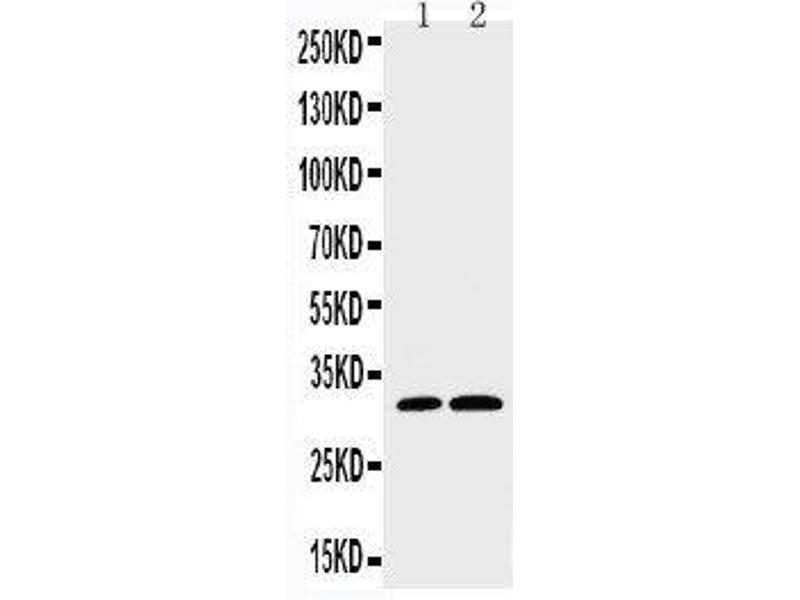 Western Blotting (WB) image for anti-Caspase 3, Apoptosis-Related Cysteine Peptidase (CASP3) (AA 220-236), (C-Term) antibody (ABIN3044357)