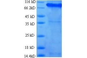 Image no. 1 for Succinate Dehydrogenase Complex, Subunit A, Flavoprotein (Fp) (SDHA) (AA 44-664) protein (His-SUMO Tag) (ABIN5710326)