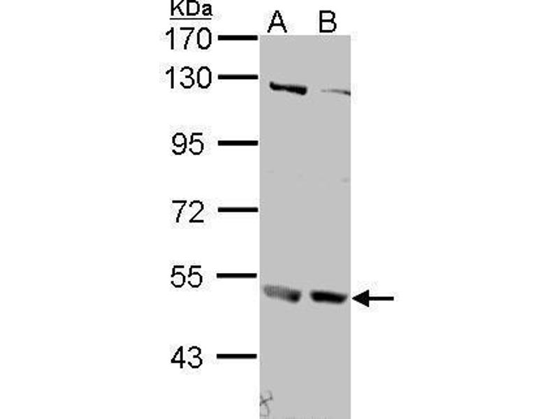 Western Blotting (WB) image for anti-IFNAR2 antibody (Interferon alpha/beta Receptor 2) (Center) (ABIN2856183)