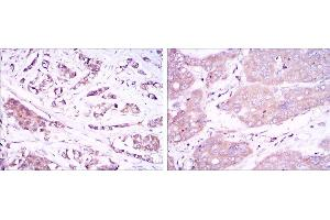 Image no. 2 for anti-Beclin 1, Autophagy Related (BECN1) antibody (ABIN968976)
