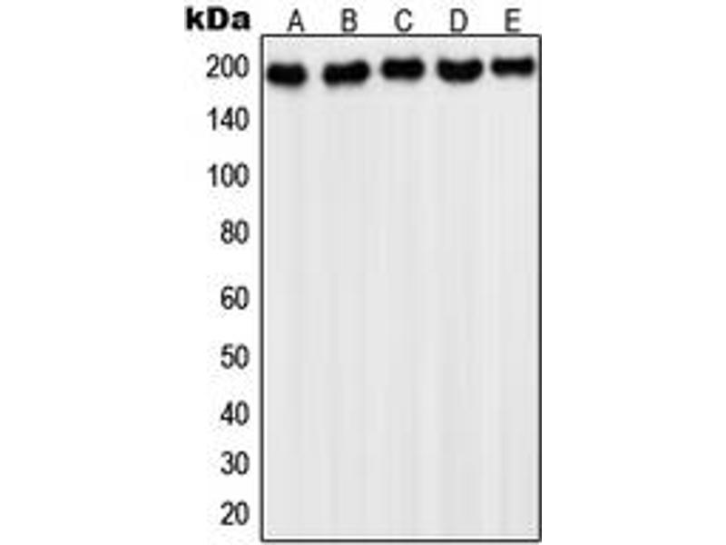 Western Blotting (WB) image for anti-Platelet-Derived Growth Factor Receptor, alpha Polypeptide (PDGFRA) (C-Term) antibody (ABIN2993085)