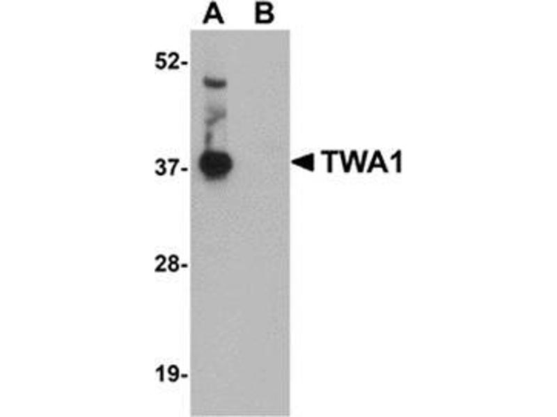 Western Blotting (WB) image for anti-Tetratricopeptide Repeat Domain 5 (TTC5) (C-Term) antibody (ABIN501091)