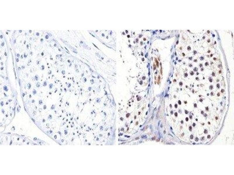 Immunohistochemistry (Paraffin-embedded Sections) (IHC (p)) image for anti-DNMT3B antibody (DNA (Cytosine-5-)-Methyltransferase 3 beta) (ABIN152675)