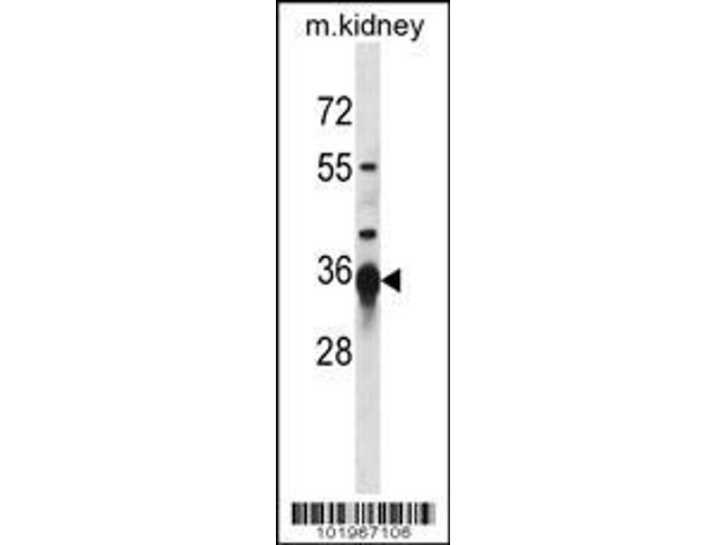 Western Blotting (WB) image for anti-SIRT3 antibody (Sirtuin 3) (AA 250-279) (ABIN390178)