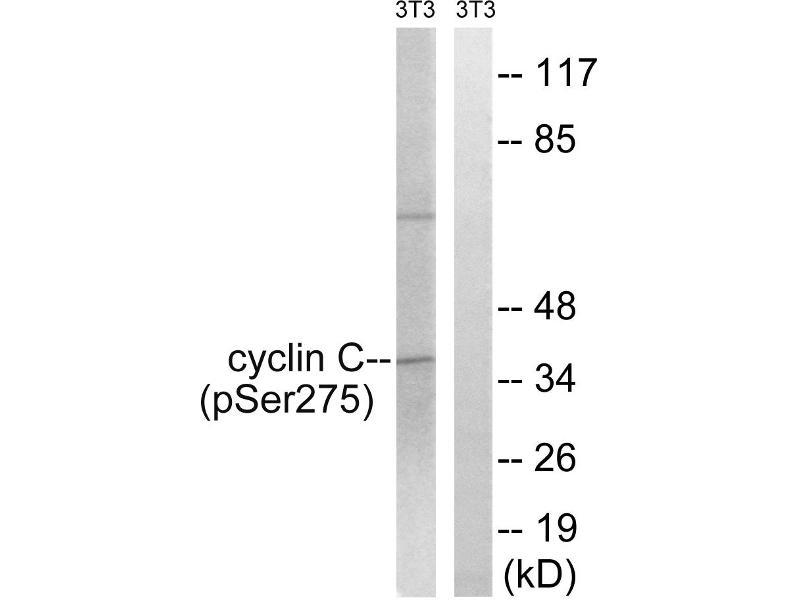 Image no. 2 for anti-Cyclin C (CCNC) (pSer275) antibody (ABIN1575924)