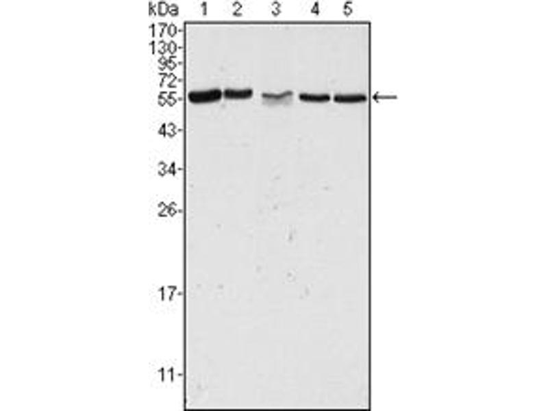 Western Blotting (WB) image for anti-PAK2 antibody (P21-Activated Kinase 2) (ABIN1108567)