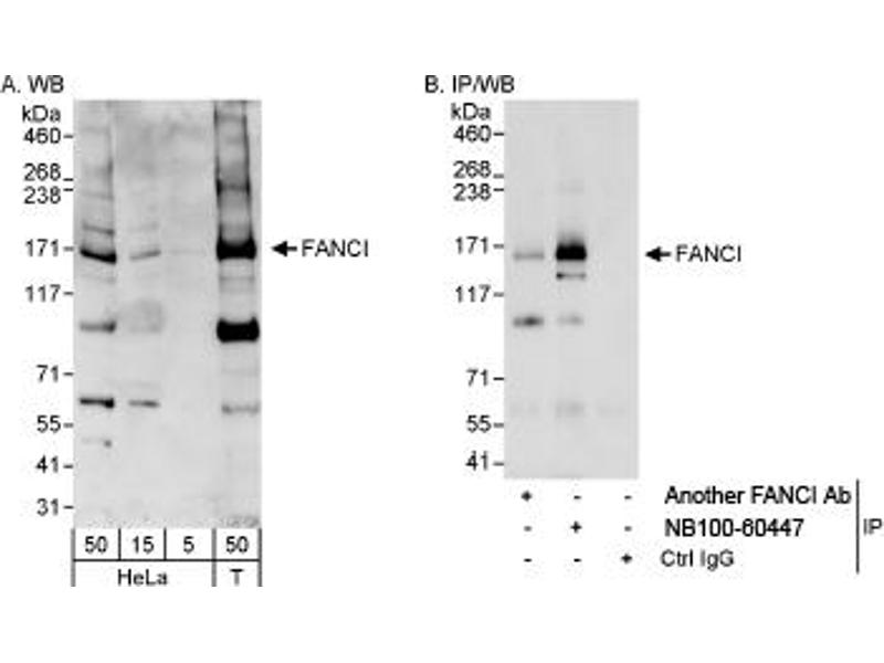 Western Blotting (WB) image for anti-Fanconi Anemia Complementation Group I (FANCI) (AA 1025-1075) antibody (ABIN253065)