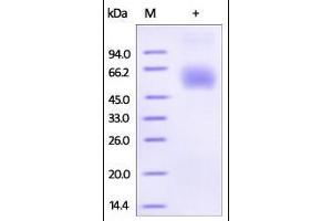 SDS-PAGE (SDS) image for Lumican (LUM) (AA 19-338) (Active) protein (His tag) (ABIN2181488)