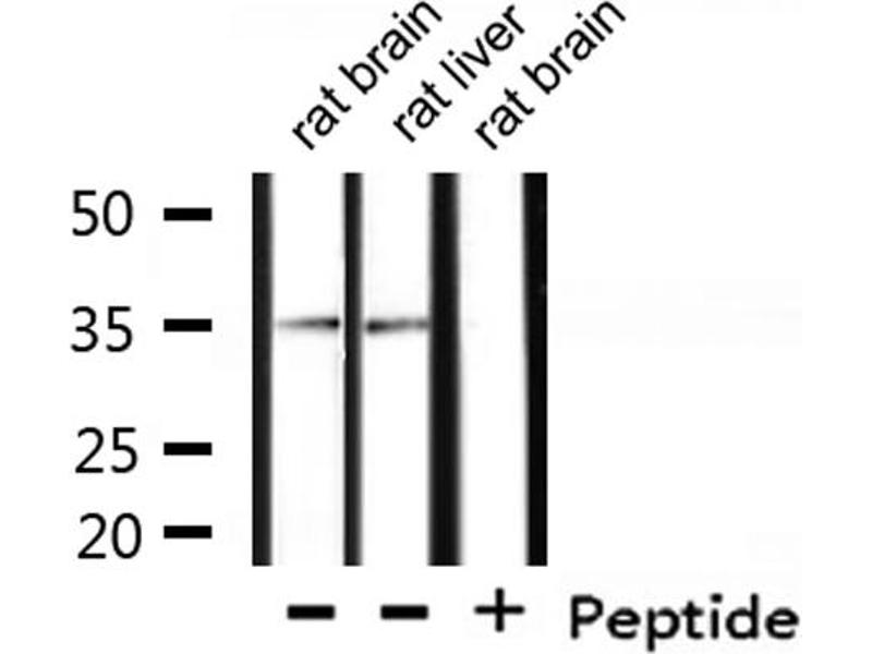 Western Blotting (WB) image for anti-Casein Kinase 1, alpha 1 (CSNK1A1) antibody (ABIN6257059)