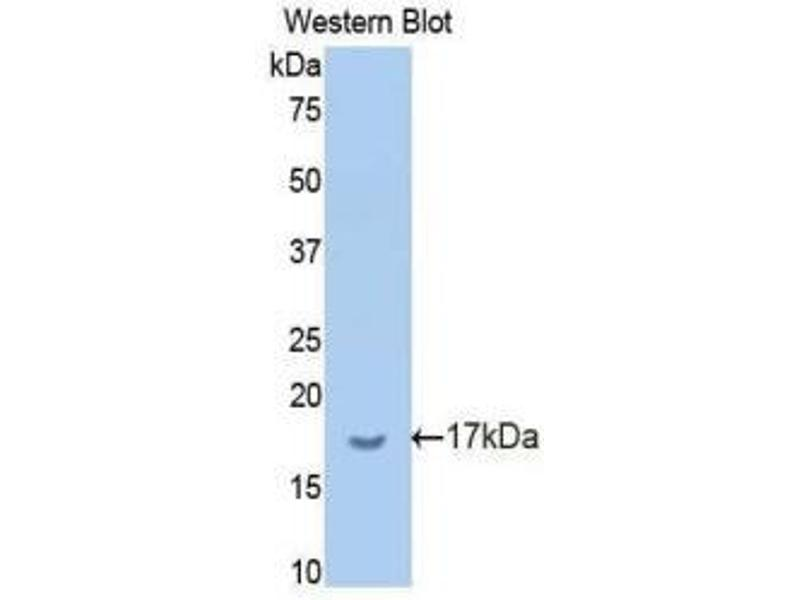 Western Blotting (WB) image for anti-Butyrylcholinesterase (BCHE) (AA 29-150) antibody (ABIN1859232)
