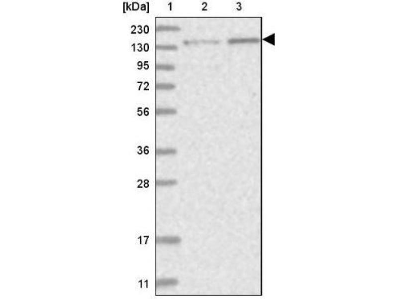 Western Blotting (WB) image for anti-PPP2R3A antibody (Protein Phosphatase 2, Regulatory Subunit B'', alpha) (ABIN4347100)