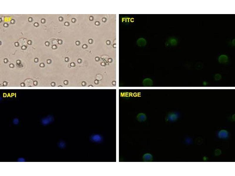 image for anti-Catenin (Cadherin-Associated Protein), beta 1, 88kDa (CTNNB1) (AA 682-781), (partial) antibody (ABIN514758)