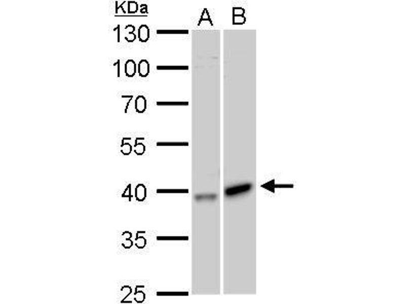 Western Blotting (WB) image for anti-Galactokinase 1 (GALK1) (Center) antibody (ABIN2854496)