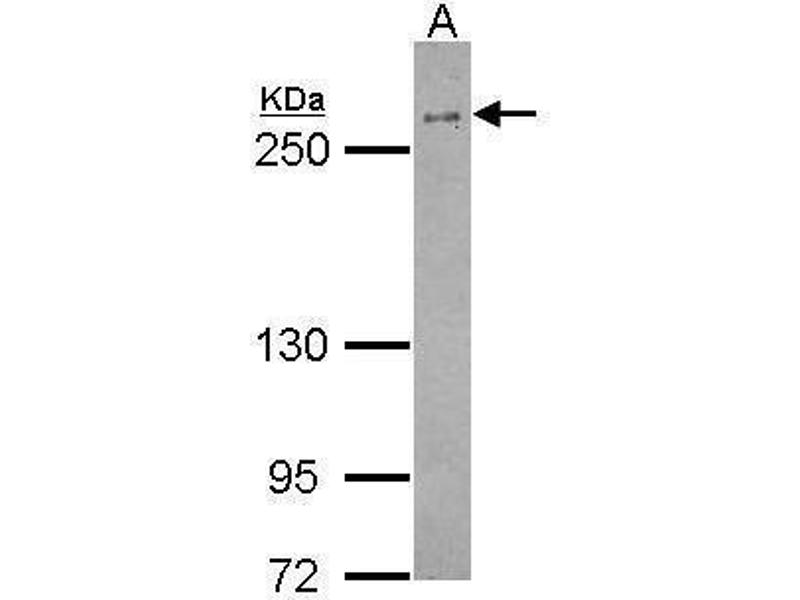 Western Blotting (WB) image for anti-BRCA1 antibody (Breast Cancer 1) (AA 341-748) (ABIN136331)