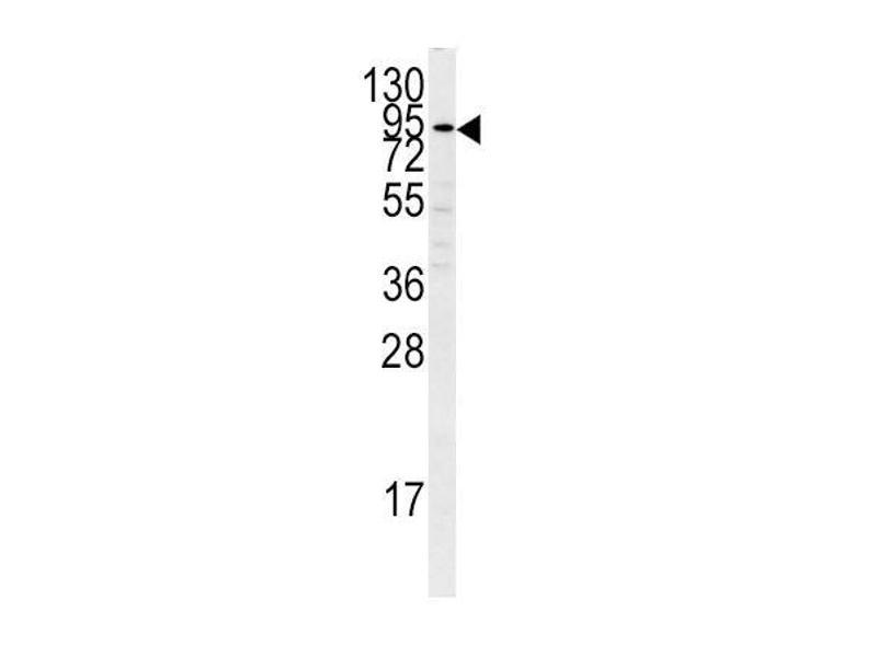 Western Blotting (WB) image for anti-PLG antibody (Plasminogen) (C-Term) (ABIN2492985)