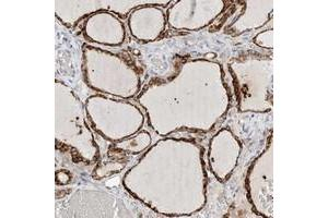 Image no. 1 for anti-Endo-beta-N-Acetylglucosaminidase (ENGASE) antibody (ABIN5578212)