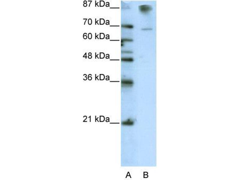 Western Blotting (WB) image for anti-HKR1, GLI-Kruppel Zinc Finger Family Member (HKR1) (C-Term) antibody (ABIN2778582)