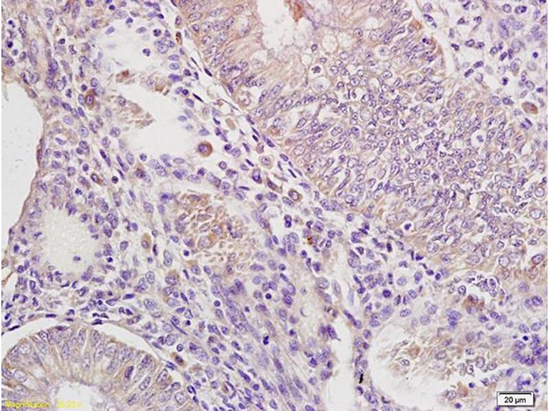 Immunohistochemistry (IHC) image for anti-Interleukin-1 Receptor-Associated Kinase 4 (IRAK4) (AA 20-55) antibody (ABIN740310)