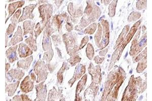 Image no. 2 for anti-Vinculin (VCL) (pTyr821) antibody (ABIN6256040)