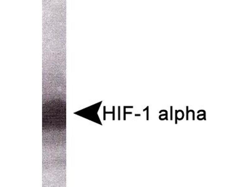 Western Blotting (WB) image for anti-Hypoxia Inducible Factor 1, alpha Subunit (Basic Helix-Loop-Helix Transcription Factor) (HIF1A) antibody (ABIN151762)