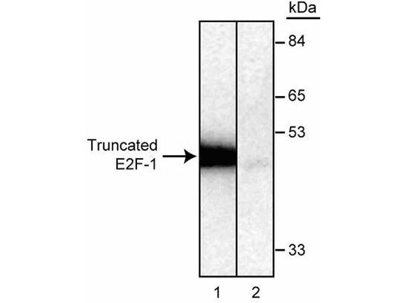 image for anti-E2F1 antibody (E2F Transcription Factor 1) (ABIN967439)