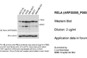 Western Blotting (WB) image for anti-p65 Antikörper (Nuclear Factor-KB P65) (Middle Region) (ABIN2779316)