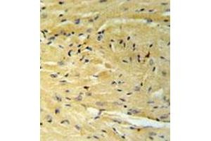 Immunohistochemistry (Paraffin-embedded Sections) (IHC (p)) image for anti-GNAT1 antibody (Guanine Nucleotide Binding Protein (G Protein), alpha Transducing Activity Polypeptide 1) (AA 297-326) (ABIN955309)