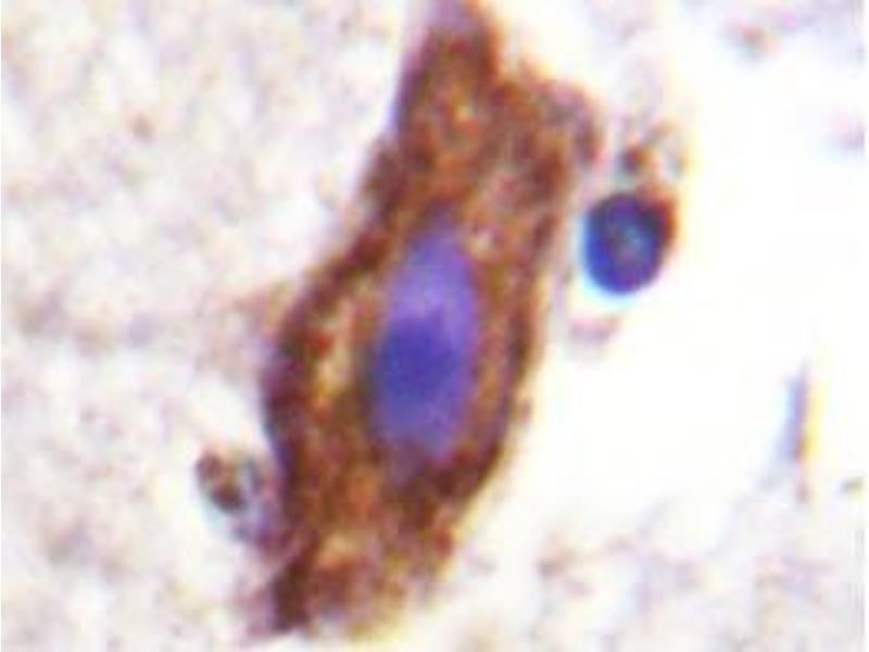 Immunohistochemistry (Paraffin-embedded Sections) (IHC (p)) image for anti-CSF1R antibody (Colony Stimulating Factor 1 Receptor) (ABIN498117)
