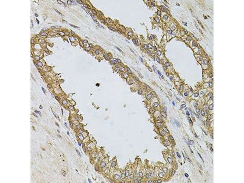 Image no. 3 for anti-Phosphoinositide-3-Kinase, Catalytic, alpha Polypeptide (PIK3CA) antibody (ABIN6566545)