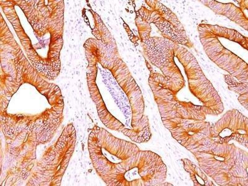 Immunohistochemistry (Paraffin-embedded Sections) (IHC (p)) image for anti-Cytokeratin 1 (KRT1) antibody (ABIN4302150)