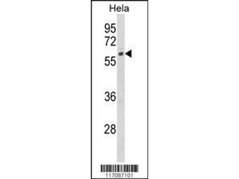 Western Blotting (WB) image for anti-Cytochrome P450, Family 7, Subfamily B, Polypeptide 1 (CYP7B1) (AA 252-281), (Center) antibody (ABIN652732)