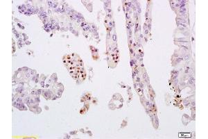 Immunohistochemistry (IHC) image for anti-Signal Transducer and Activator of Transcription 3 (Acute-Phase Response Factor) (STAT3) (AA 685-725), (pTyr705) antibody (ABIN732638)