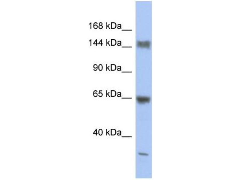 Western Blotting (WB) image for anti-Ataxin 2 (ATXN2) (Middle Region) antibody (ABIN2780458)