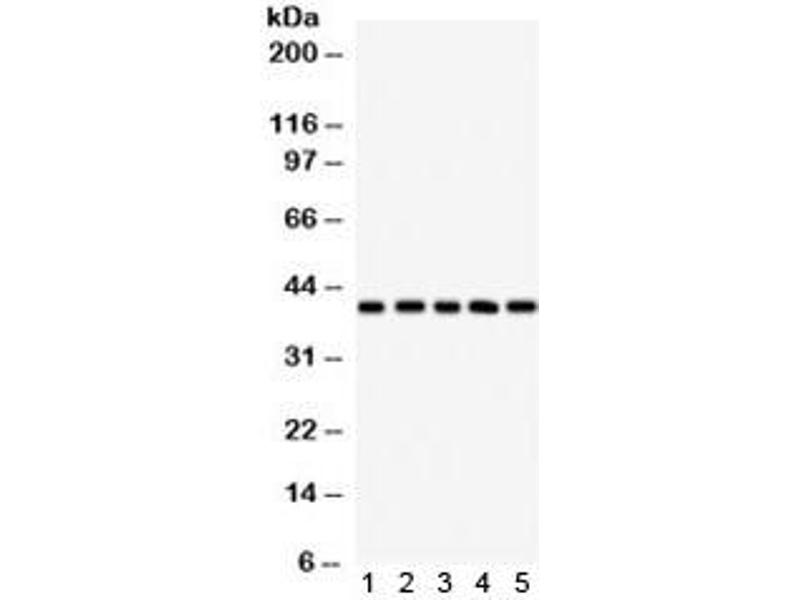 Image no. 1 for anti-Major Histocompatibility Complex Class I C (HLA-C) antibody (ABIN4951309)