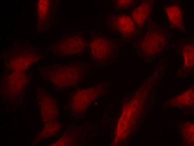 Immunofluorescence (IF) image for anti-GATA Binding Protein 1 (Globin Transcription Factor 1) (GATA1) (pSer310) antibody (ABIN2988024)
