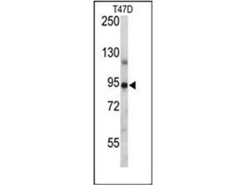 Western Blotting (WB) image for anti-Progesterone Receptor (PGR) (AA 348-377), (Middle Region) antibody (ABIN954305)