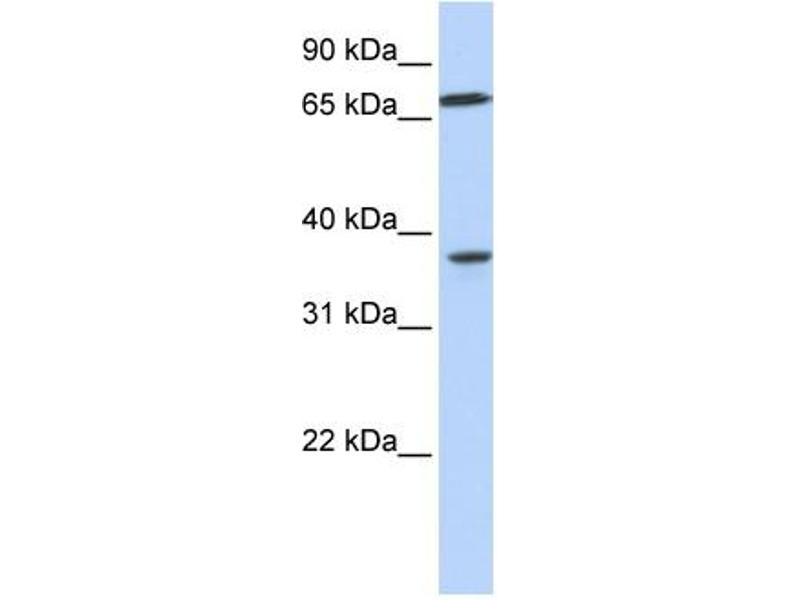 Western Blotting (WB) image for anti-Mitogen-Activated Protein Kinase Kinase 3 (MAP2K3) (C-Term) antibody (ABIN2777129)